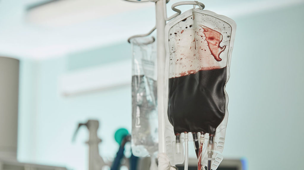 A blood bag pictured before a blood transfusion, which may cause reactions.
