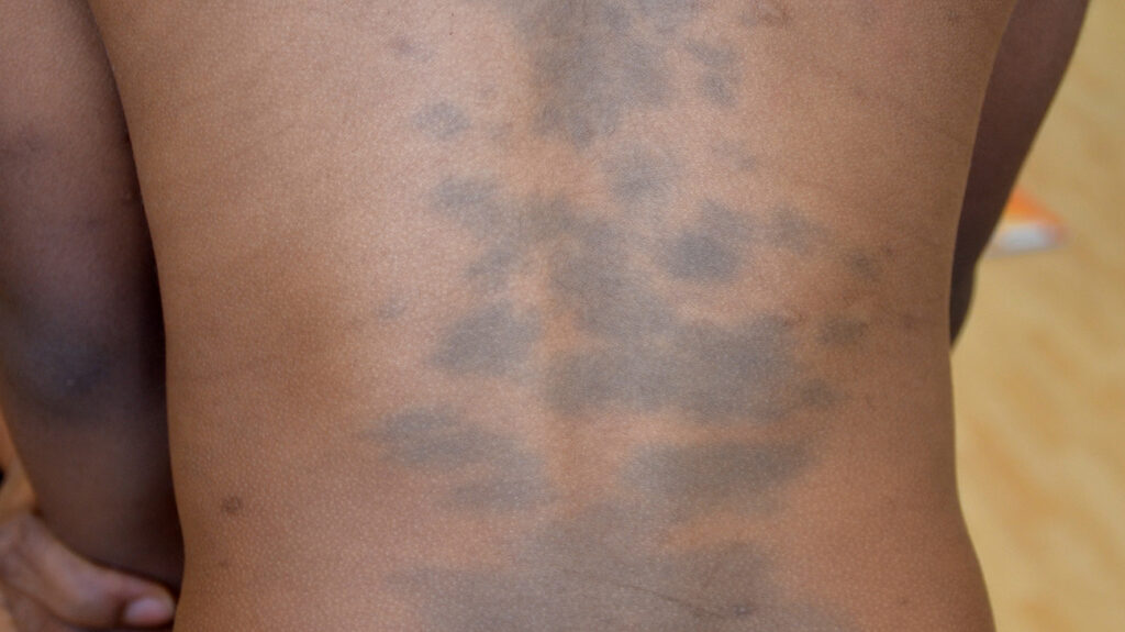 Mongolian blue spots on a mans back