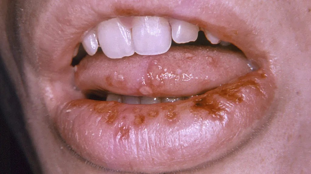 cold sore or herpes blister on the tonuge