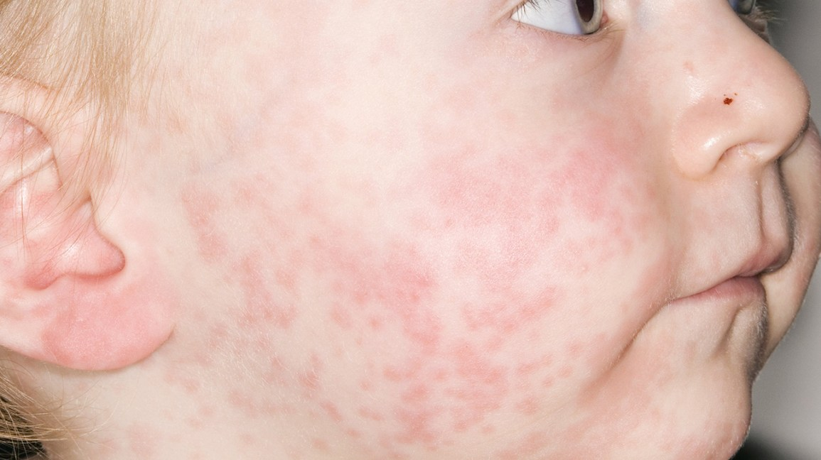 Roseola vs. measles rash: What is the difference?