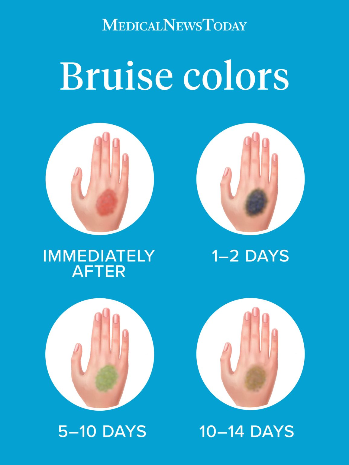 bruis colors infographic
