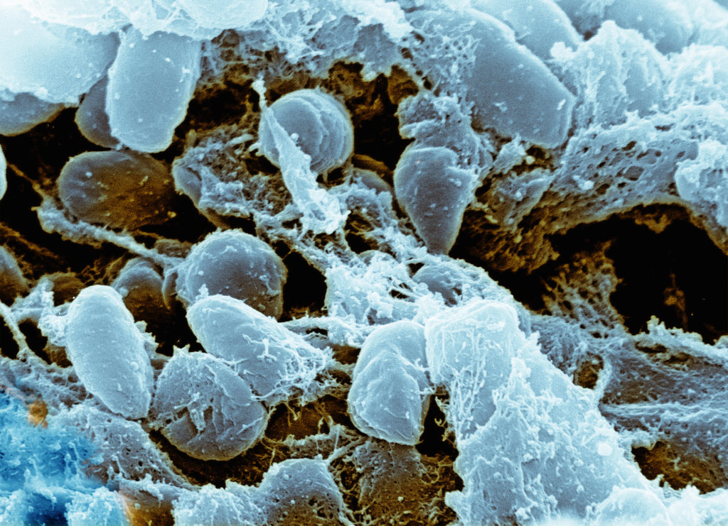 Colorized scanning electron microscope image of Yersinia pestis