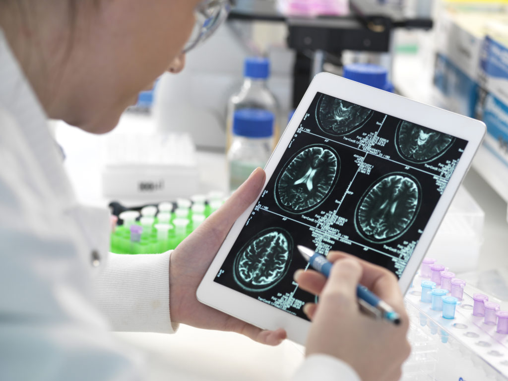 doctor looking at brain scan on tablet