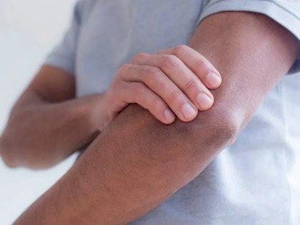 What can cause left arm pain and numbness?