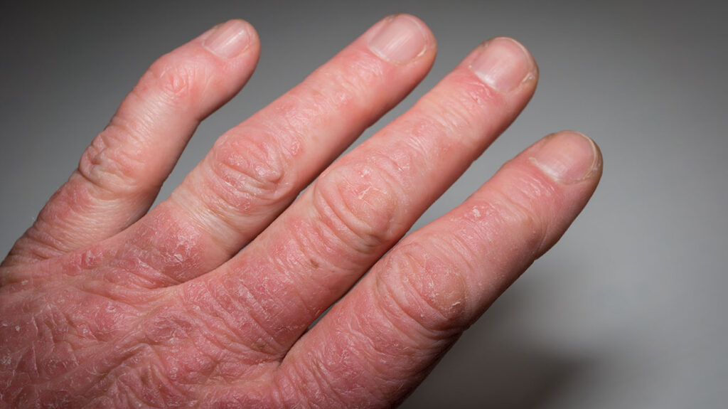 A close-up of a hand of a person with psoriatic arthritis.