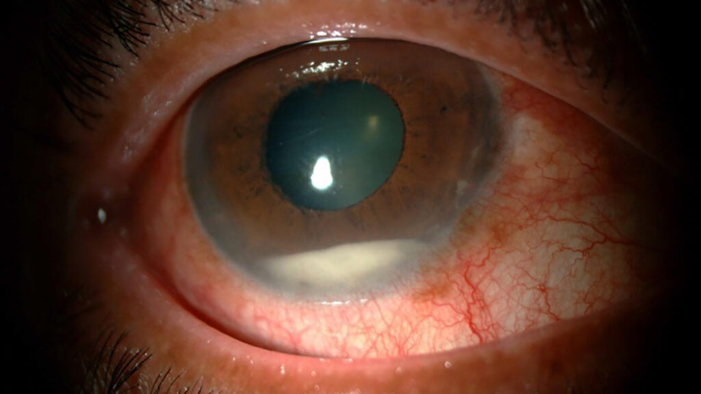 close up of an eye with endophthalmitis