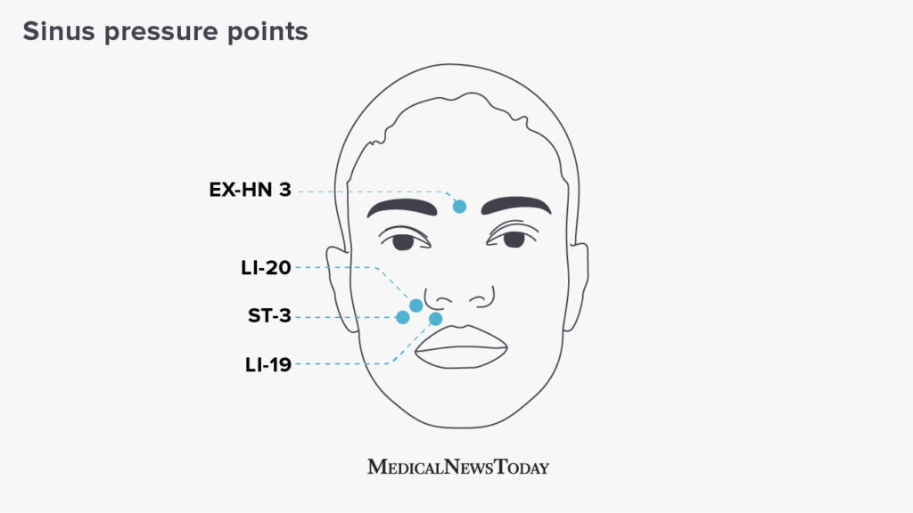 Infographic showing sinus pressure points