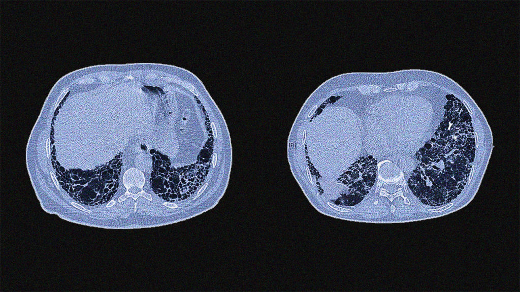 CT scans showing idiopathic pulmonary fibrosis
