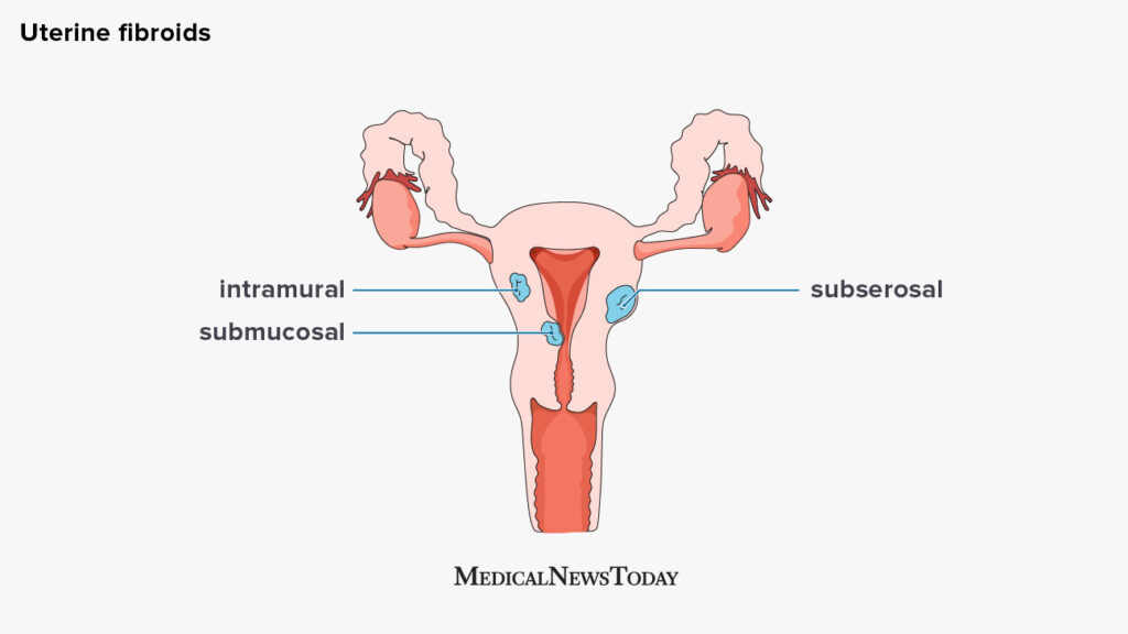 a diagram of the types of uterine fibroid: intramural, submucosal, and subserosal