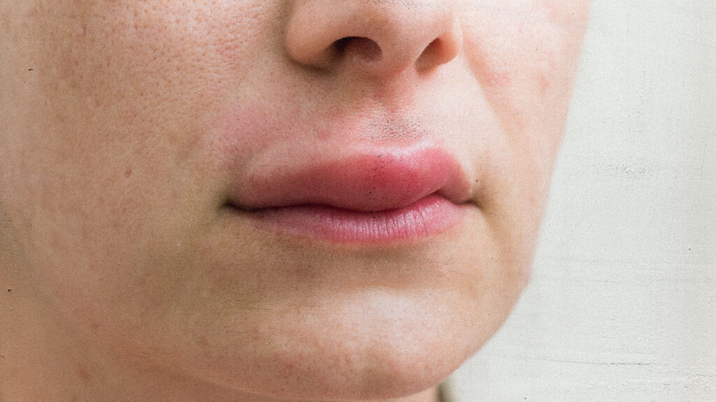 A woman with a swollen upper lip