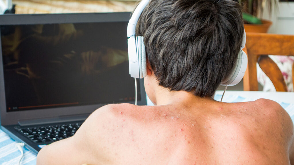A person with acne on the shoulders is wearing headphones and using a laptop