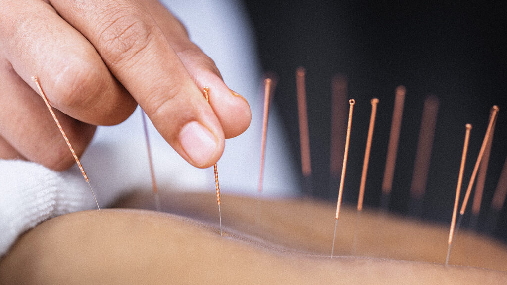"A person is seen receiving an acupuncture treatment, accompanying the article, ""Acupuncture before surgery may reduce pain, opioid use"""