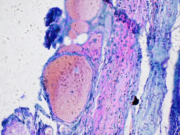 ovarian cancer news