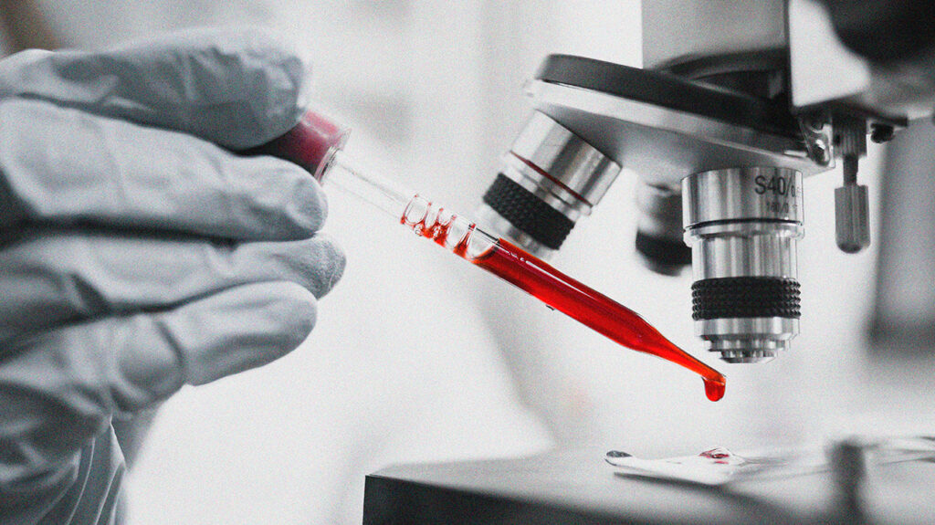 A lab technician placing blood under a microscope to check a person's complete blood count (CBC).
