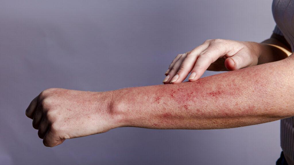 Sex rash from semen white blister
