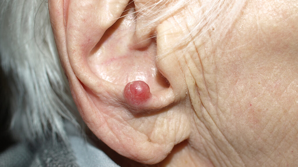 Merkel Cell Carcinoma on ear close up.