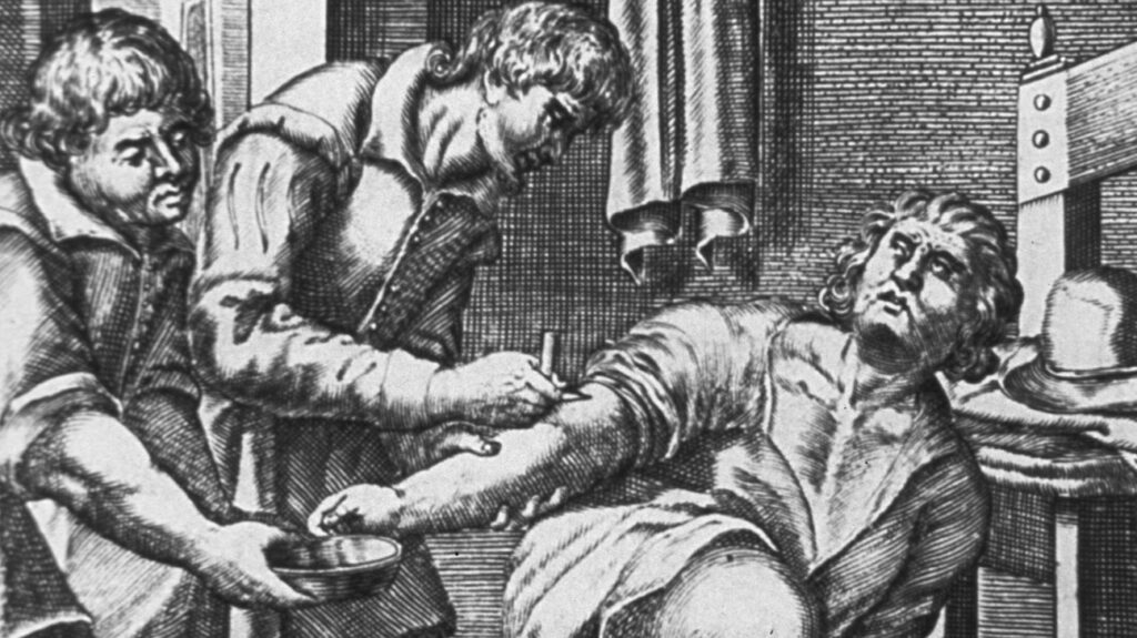 An engraved illustration of bloodletting