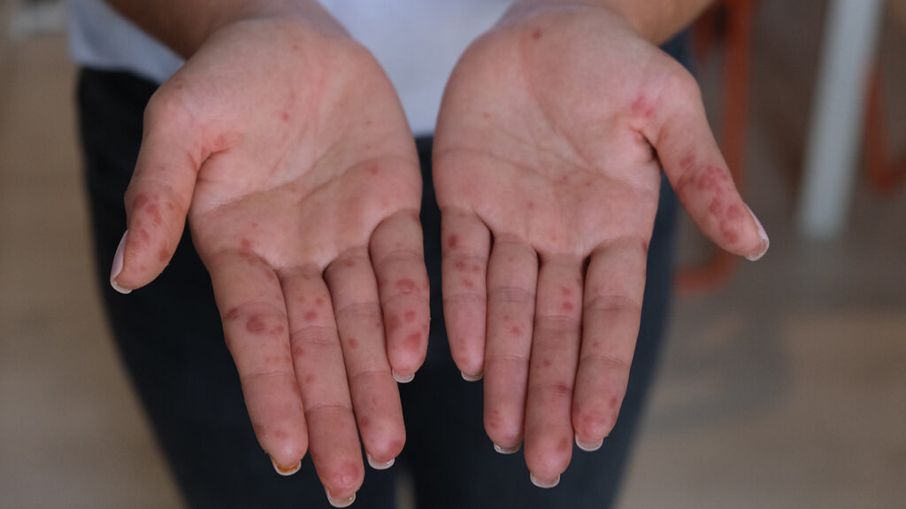 Hand, foot, and mouth disease in adults: Symptoms and ...