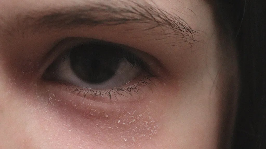 Close up of person with redness around the eyes