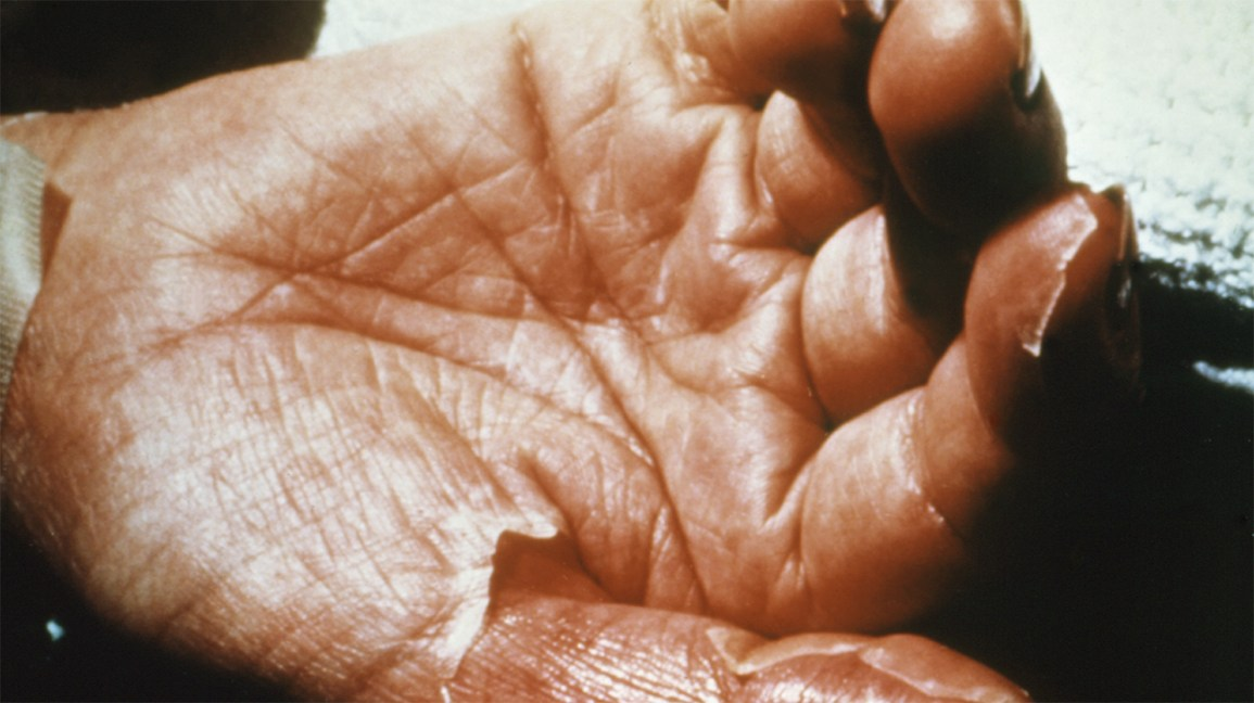 toxic shock syndrome rash on hands