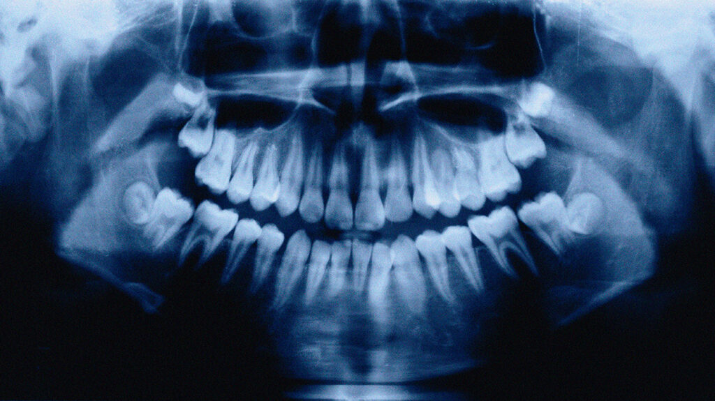 An X-ray of a person's mouth showing their teeth.