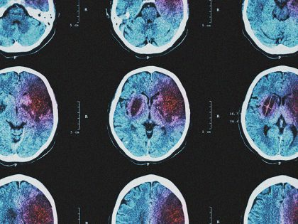 What to know about hemorrhagic stroke