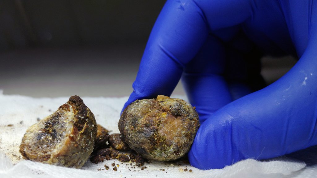 Gallstones can become lodged in the bile duct and cause inflammation or even infection of the gallbladder.