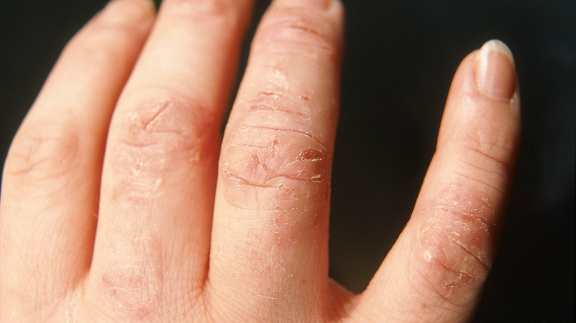 atopic dermatitis pictures on hands