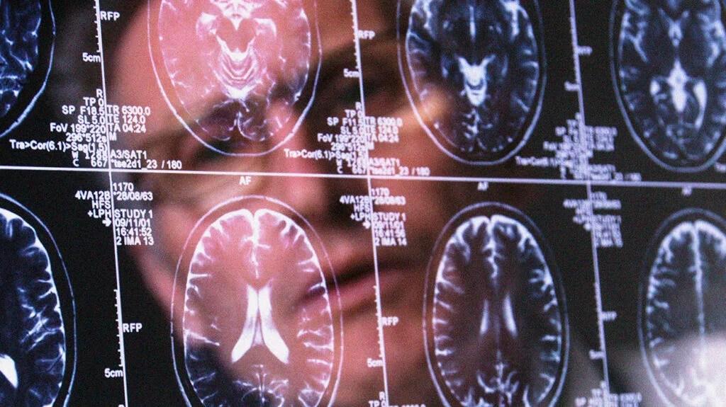 clinician examining brain scans