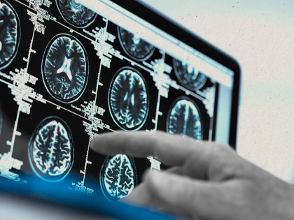 What to know about CNS lymphoma