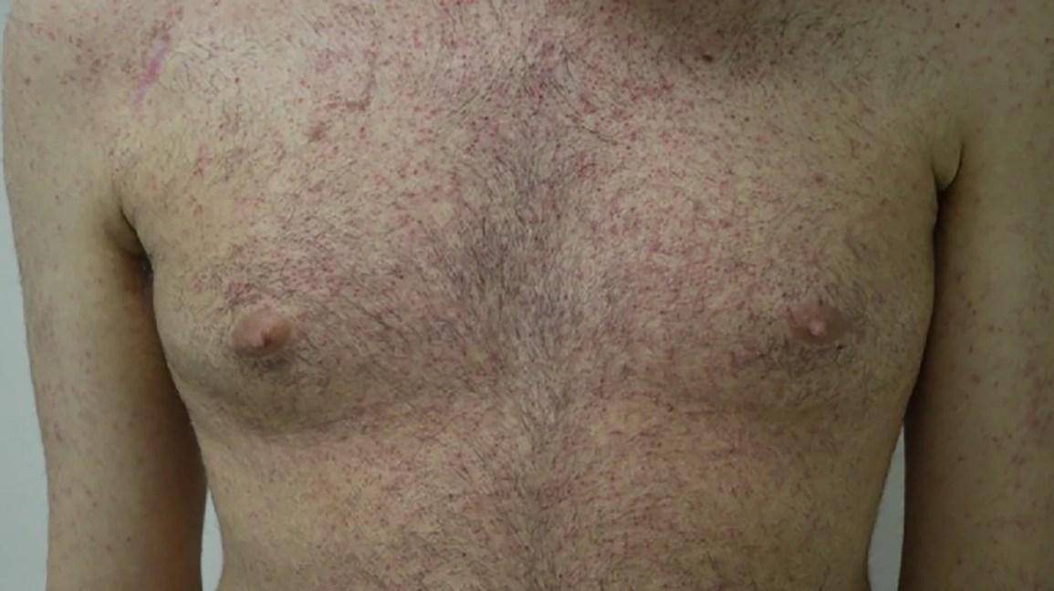 Visual signs of Crohn's disease
