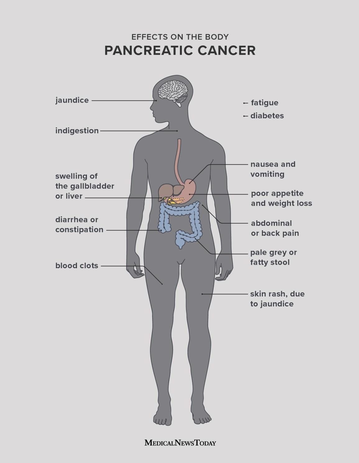 Cancer left abdominal pain, Cancer nausea abdominal pain