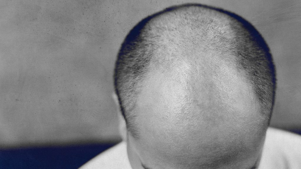 scalp with male patterned baldness