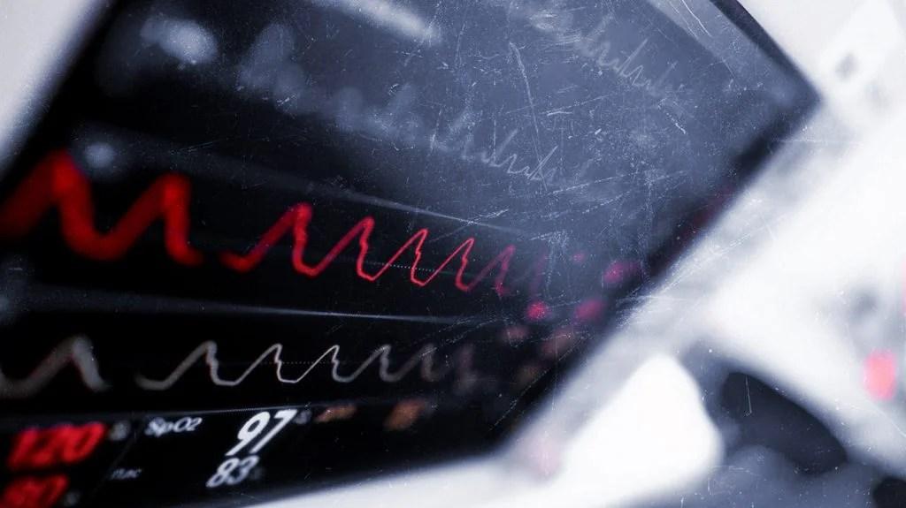 一个电子心脏监测装置的特写