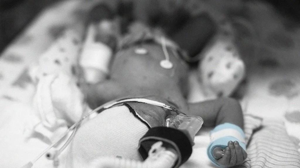 Cận cảnh trẻ sơ sinh bị loạn sản phế quản phổi