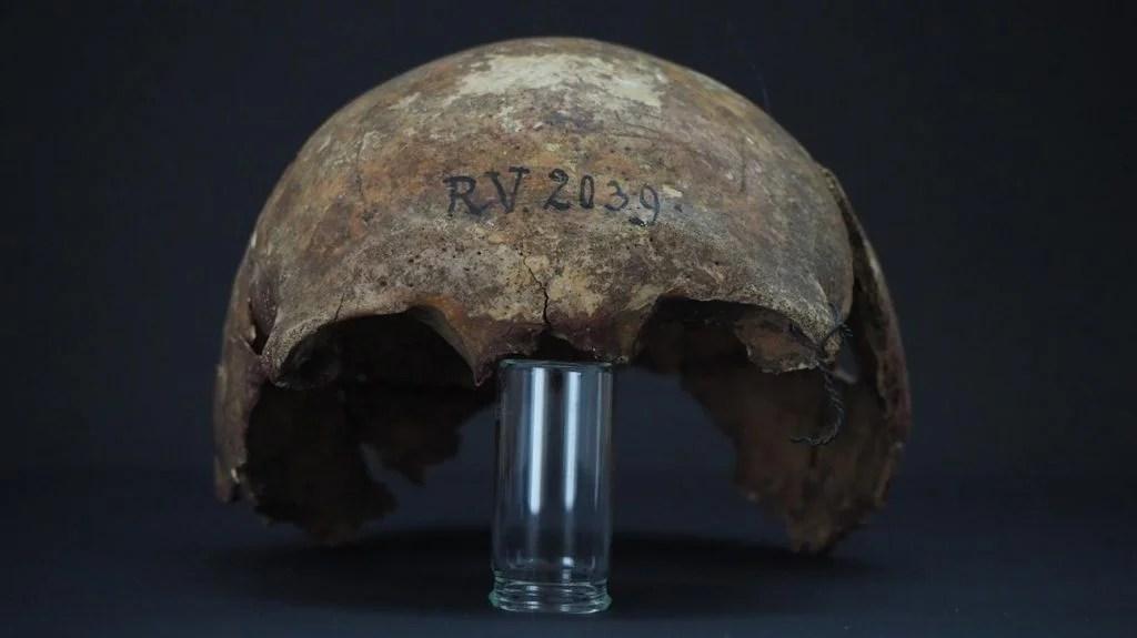 在Bubonic Plague的拉脱维亚死亡的人的部分头骨