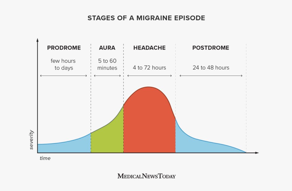 A graph showing the timeline of a migraine headache. The horizontal axis tracks the stage from left to right, while the vertical axis shows severity. The line starts low and gradually gets higher, peaking at the headache stage before declining.