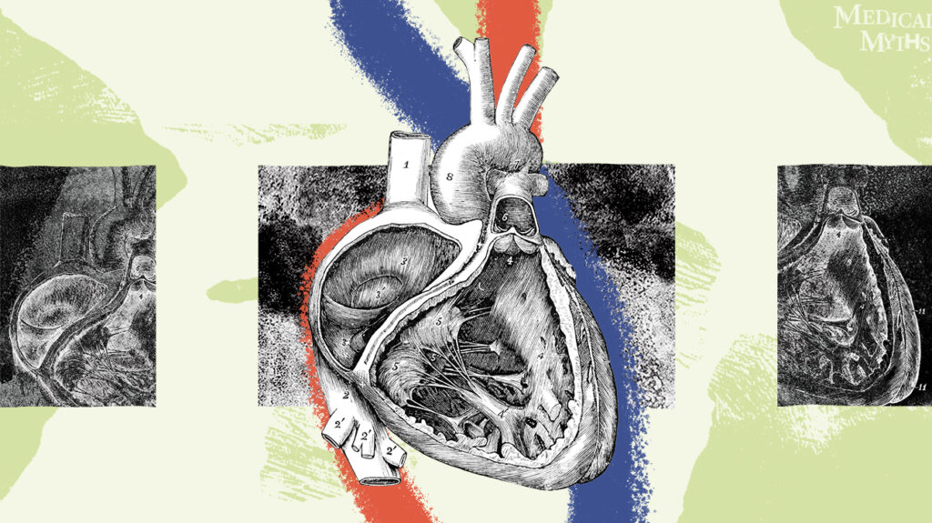 心脏裁减的老解剖图开放