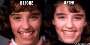 Amazing Braces Time-Lapse Video