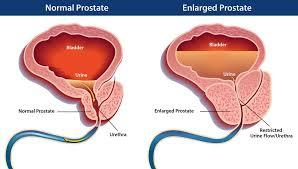 Enlarged Prostate