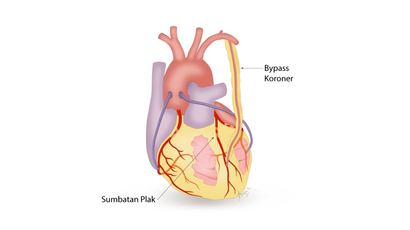 Terapi Penyakit Jantung dengan Bypass Koroner