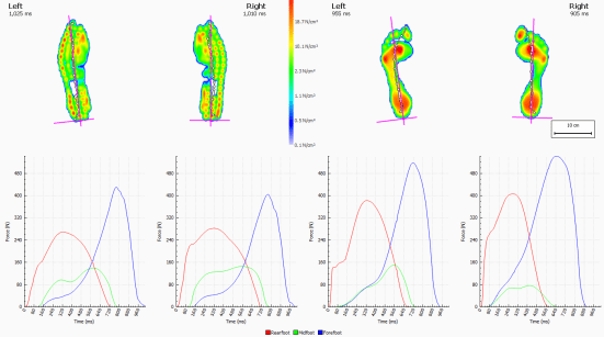 Force time comparison barefoot & orthotics2