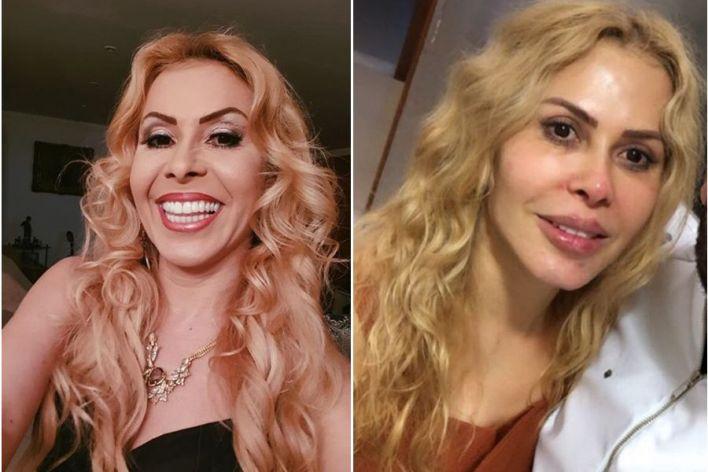 Joelma, 5 Famosos Que Fizeram Harmonização 2019 e 2020