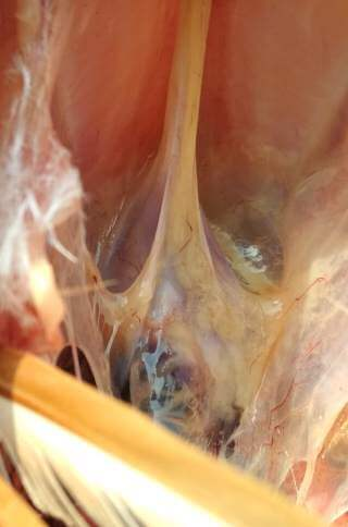 Low Pathogenic Avian Influenza lesion