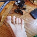 Quasimodo du pied
