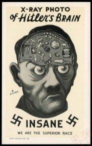 Rentgenska snimka Hitlerovog mozga 1942. godine