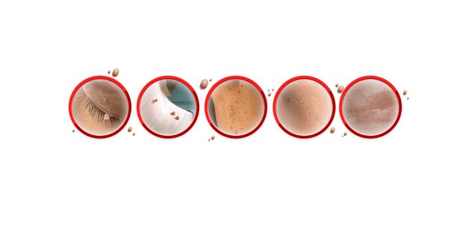 Derma-Correct-results