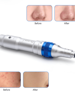 Ultima A6 Electric Micro Needling Pen with 12Pin Needles
