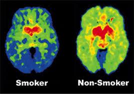 Brain.Smoker