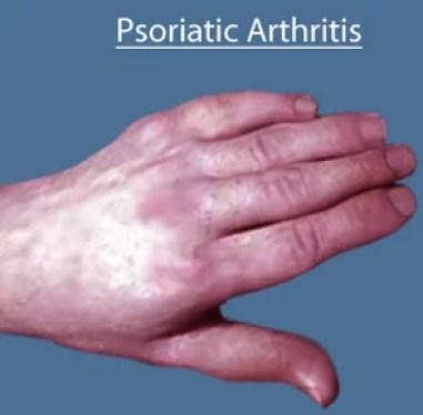 is psoriatic arthritis an inflammatory disease